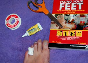 Blister between toes...really?